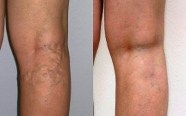 Before and after using Varicobooster 1