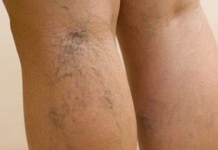 Varicose veins in the feet