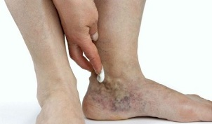 Manifestations of varicose veins in the legs.