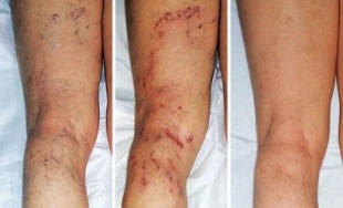 symptoms of varicose veins in the legs