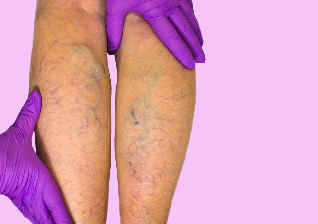 the causes of varicose veins