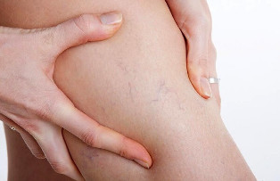 the signs of varicose veins