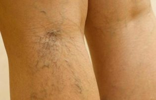 treatment of varicose veins in the legs