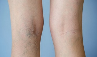 signs of varicose veins on the legs in women