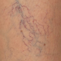 The manifestations of varicose veins